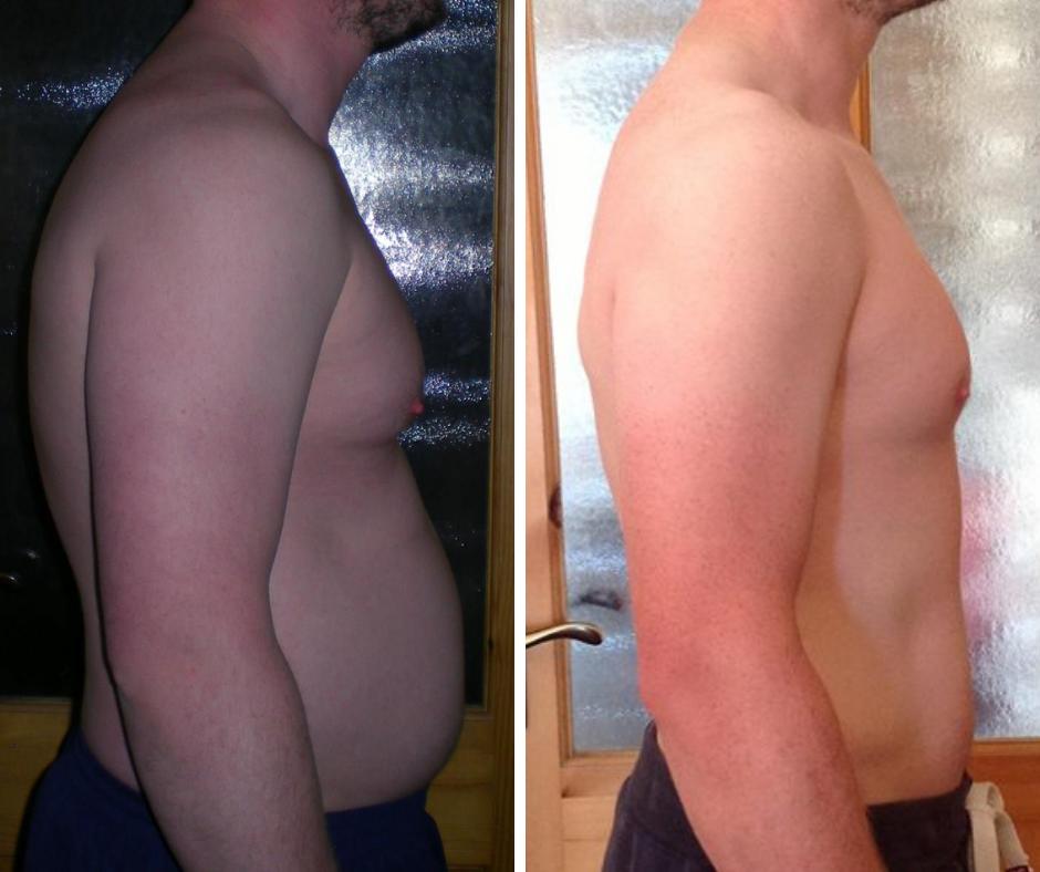 weight loss dublin